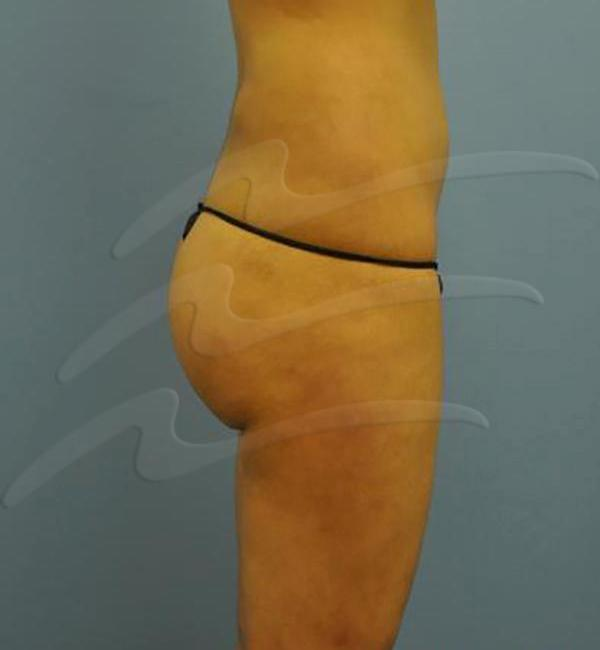 Body contouring Before & After Image