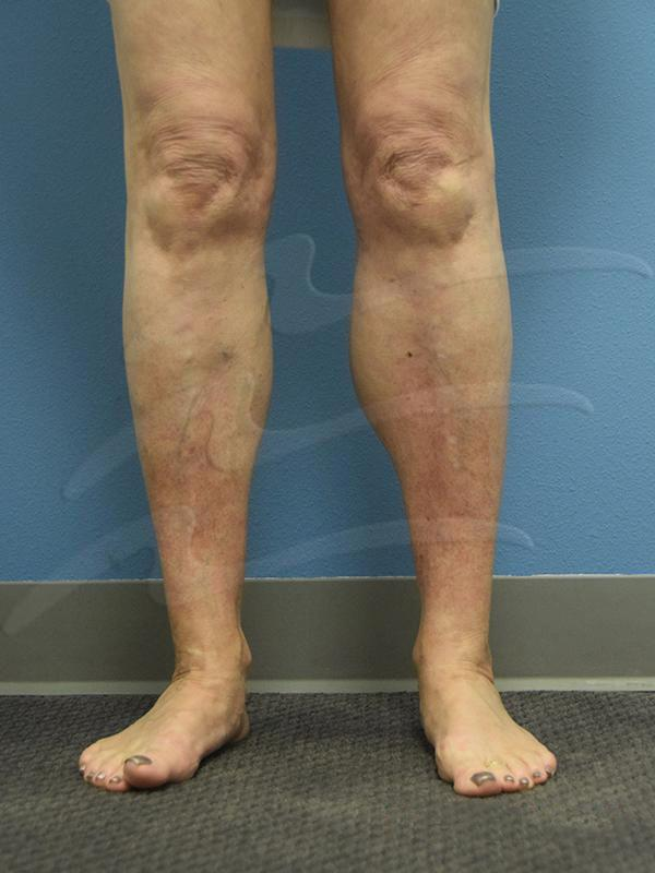 Calf augmentation Before & After Image