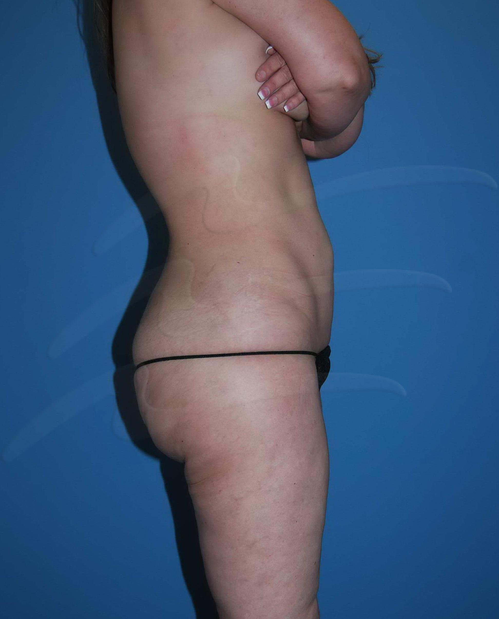 Smart lipo Before & After Image