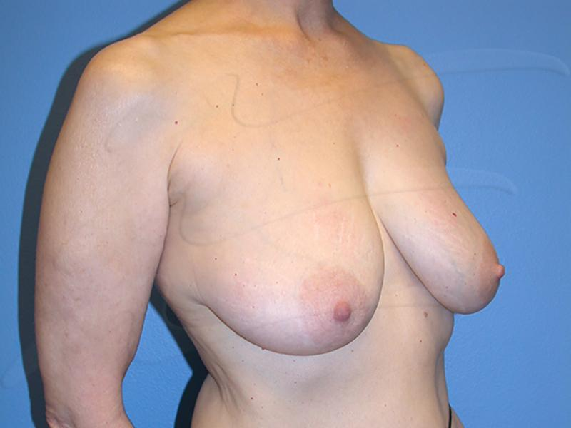 Breast reduction Before & After Image