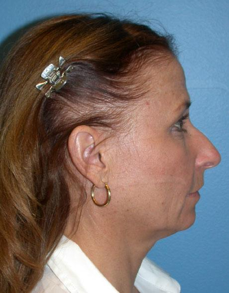 Chin implant Before & After Image