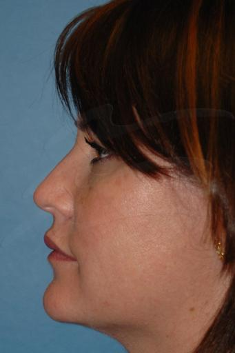 Facial fat transfer Before & After Image